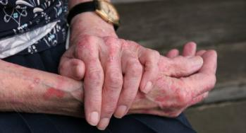 נטורופתיה: אטופיק דרמטיטיס – אסתמה של העור